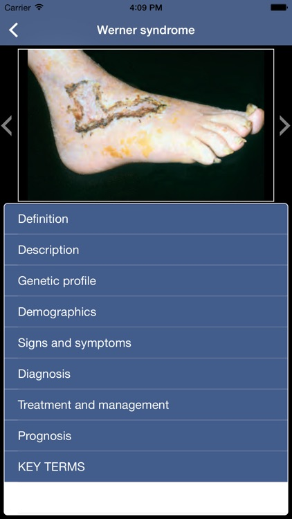 Genetic Disorders and Syndromes Pocket screenshot-4