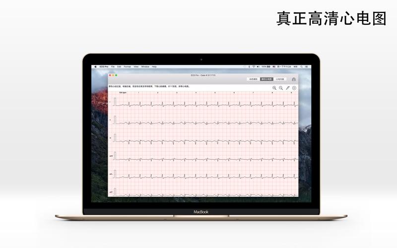 ECG Pro - 12导联静态和动态心电图案例
