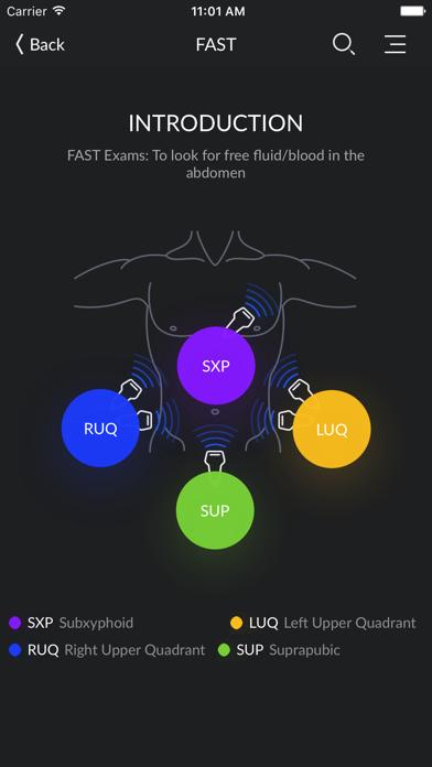 RESUS Ultrasoundのおすすめ画像5