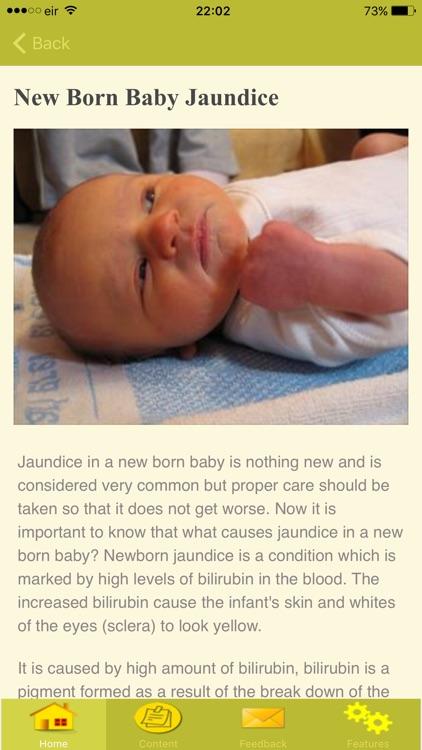 Symptoms Of Jaundice