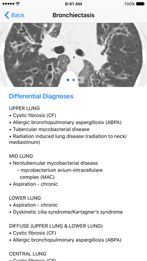 chest radiology patterns and differential diagnoses 7e