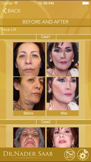 CCE - Dr Nader Saab Clinic (Reviews) Dubai, UAE