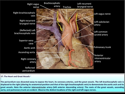 All-in-One Anatomy Exam Review: Volume 2. The Thorax by Carlos A ...