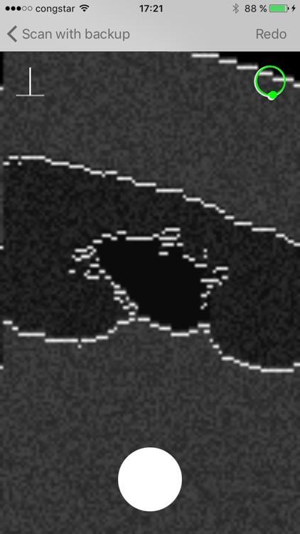 Ultraschall screenshot-3