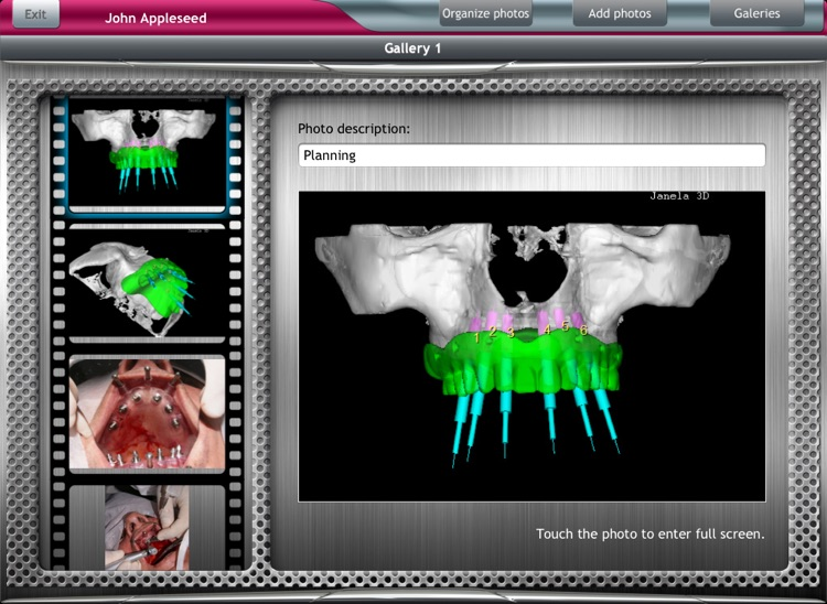 DentalChart screenshot-4