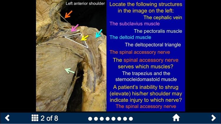 MSK Anatomy Lite - SecondLook