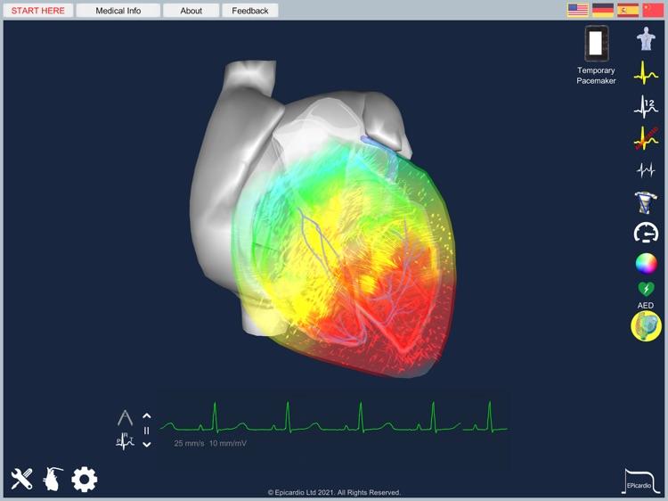 Epicardio Heart Simulator screenshot-7