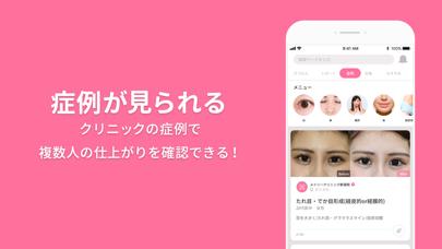 美容整形・美容医療の口コミ・予約アプリ 美容外科検索メイリーのおすすめ画像2