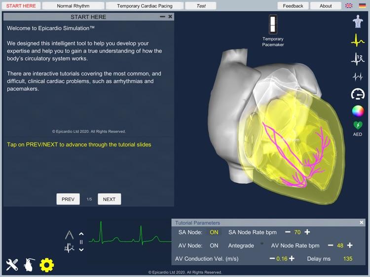 Temporary Cardiac Pacing screenshot-5