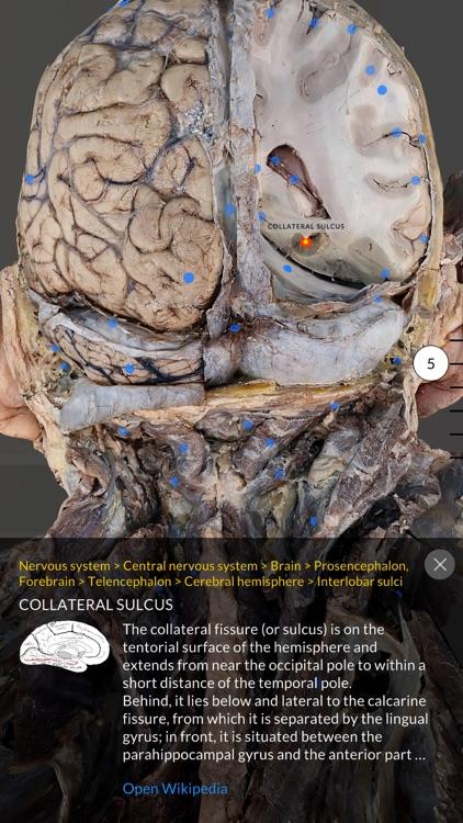 Dissection Master XR screenshot-3