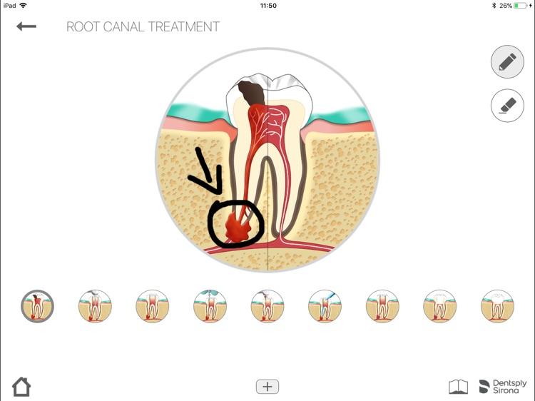Dentsply Endo IQ® App screenshot-6