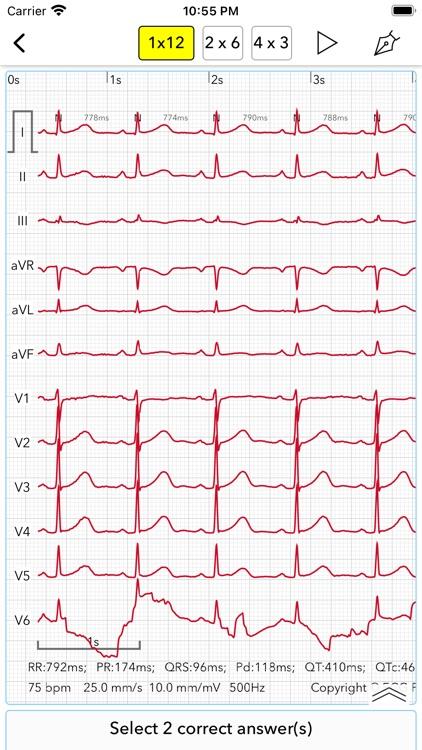 ECG Test screenshot-8