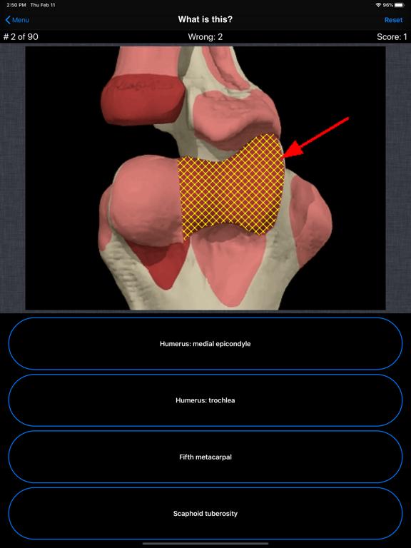 Anatomy Hand Quizのおすすめ画像2