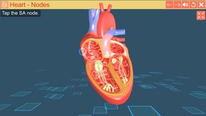 Cardiac pacemaker screenshot 5